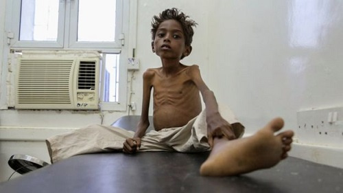 Five-year-old Mohannad Ali sits in hospital in Yemen, his younger cousin died of hunger