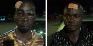 Les militants du camp PIADO Lucien Célestin ont subi coups et blessures graves