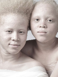 Des albinos de plus en plus persécutés et traqués dans le monde