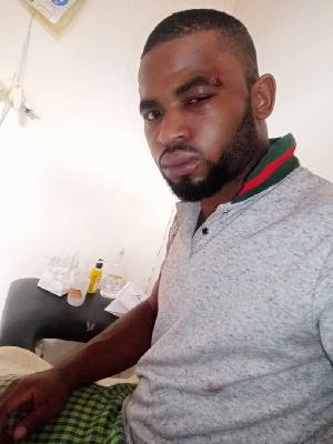 Paul Chouta molesté par des individus armés à Yaoundé