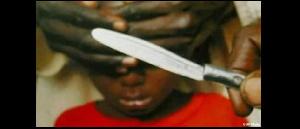 L'enfant malgré ses blessures atroces se trouve en ce moment à l'hôpital d'ekombité à à ébolowa