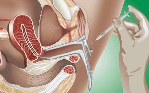 Elle consiste à introduire manuellement le sperme de l'homme au niveau de la trompe de la femme