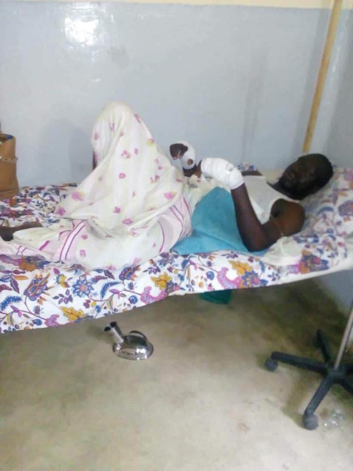 Etudiant_Maroua_Blessure_BIR1 Maroua: un élément du BIR tabasse sauvagement un étudiant [Images]